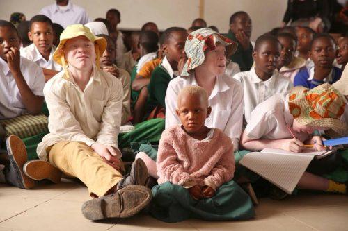 Combattere la discriminazione degli albini in Tanzania